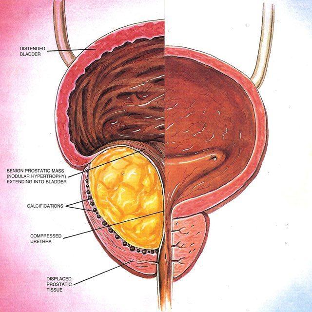 Left - Benign Prostatic Hyperplasia, Right - Healthy Prostate.