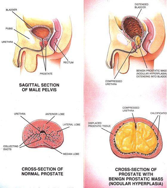 Prostate Health Durward Black Md