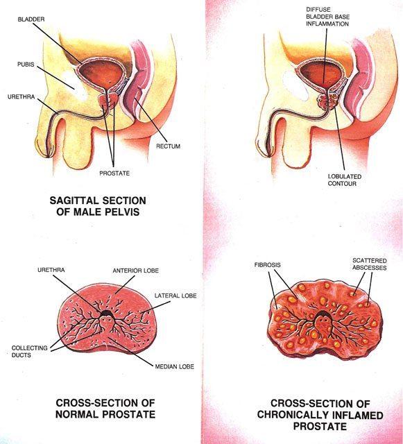Left-side: Healthy Prostate, Right-side: Chronic Prostatitis