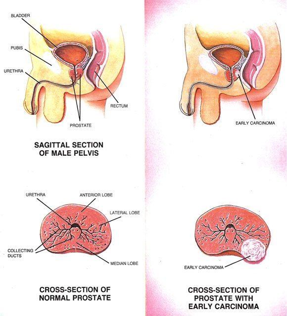 Prostate-Carcinoma-Overview