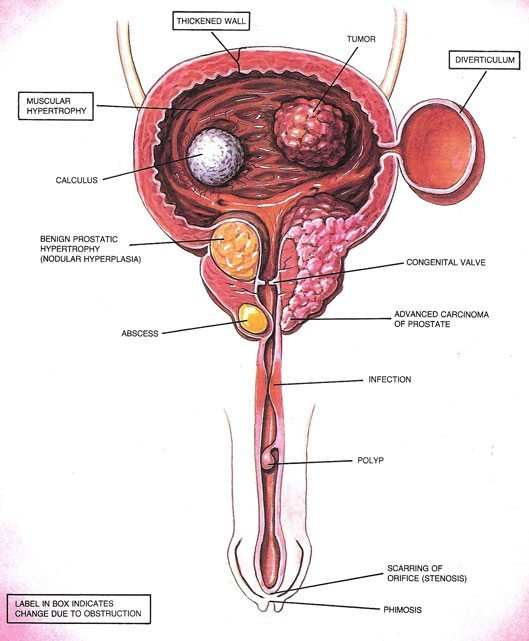 Example of Bladder Cancer (Tumor) in Male